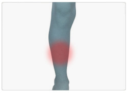 Benhinnebetennelse (Shin splints)